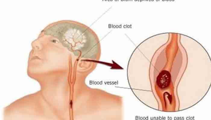 Corpul iti trimite semnale de avertizare cu o luna inainte de un accident vascular cerebral… Acestea nu trebuie ignorate
