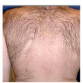 Before laser hair removal from the back