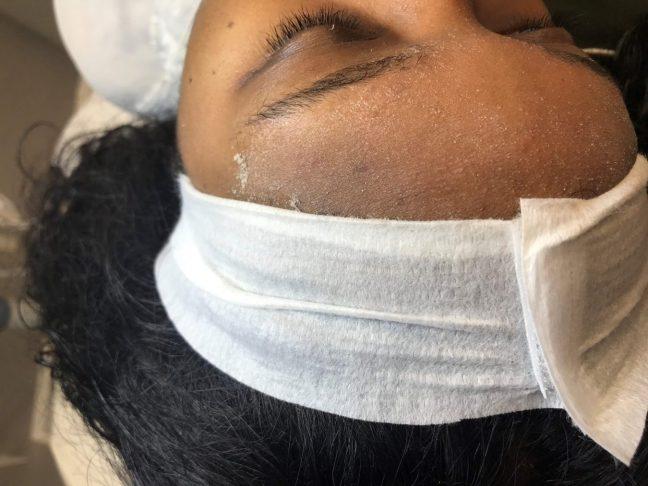 skin exfoliation from dermaplaning