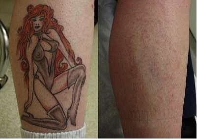 Before/After image following laser tattoo removal. Tattoo removal almost complete.