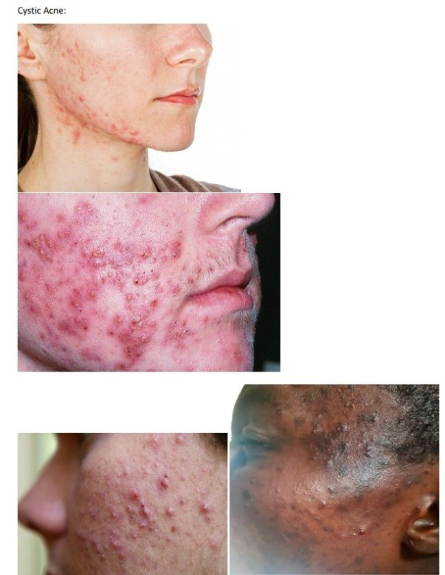 Inflammatory acne requires specialized treatment