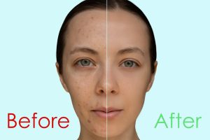 Before/After Chemical peel treatment for acne