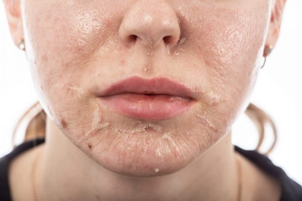 Image of peeling skin after a chemical peel