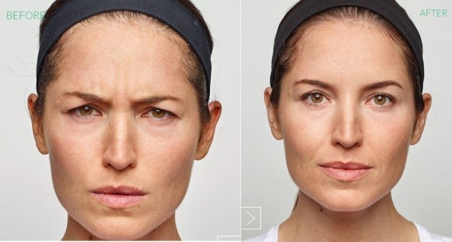 Before/After Dysport Injection to Frown lines.