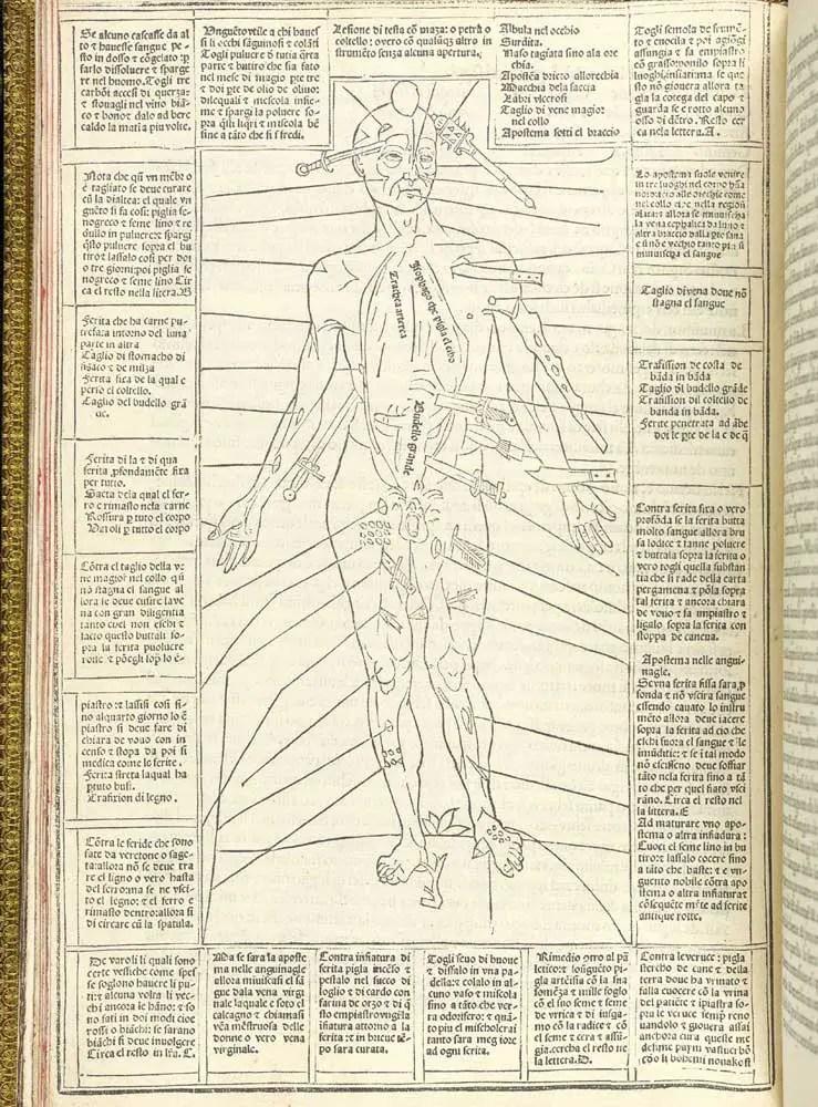 Hombre herido de 1492.
