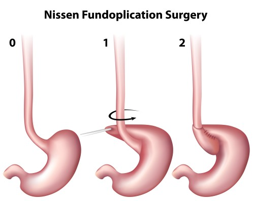 acid reflux surgery ocala, laparoscopic fundoplication