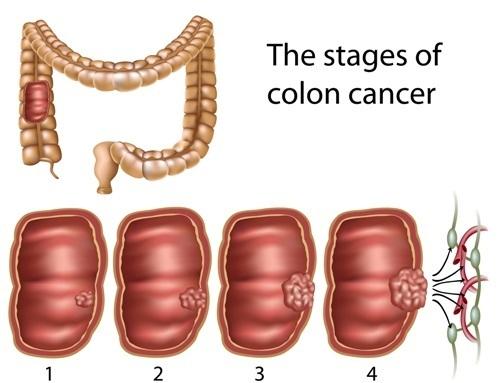 Colon Surgery Laparoscopic Colon Surgery General Surgeon Ocala