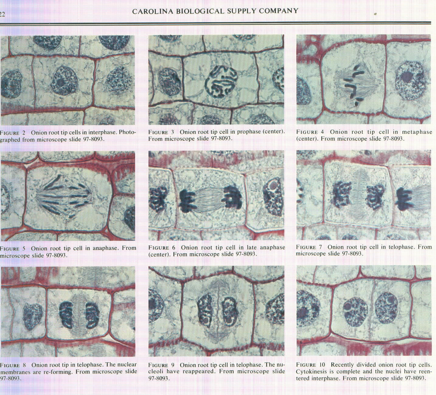 Microscope Mitosis Stages Pictures