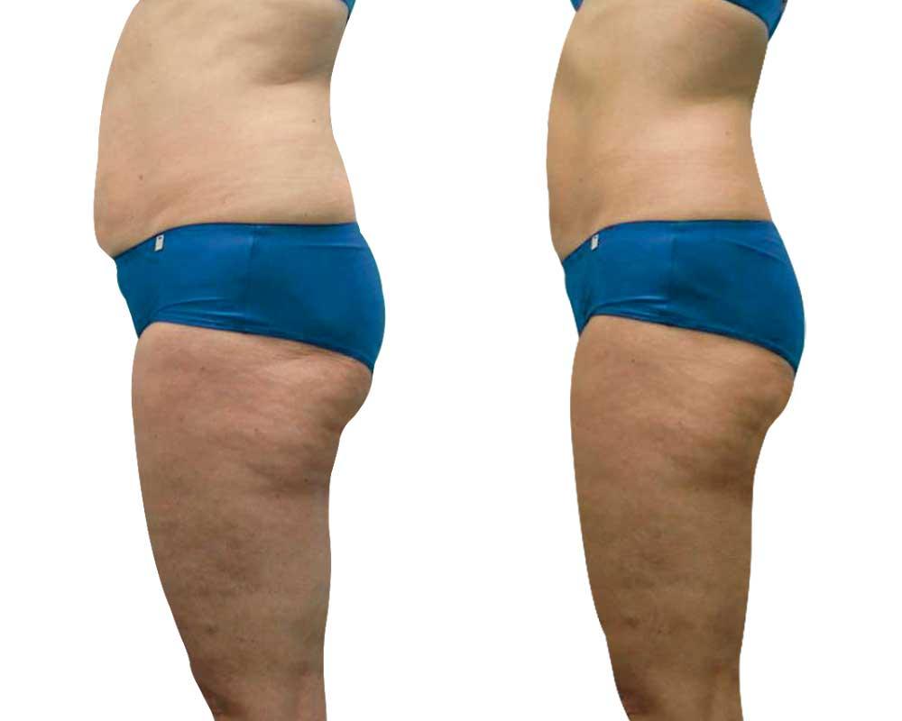 Anti-cellulite - Medical Cellu System chez Angels Soins du corps