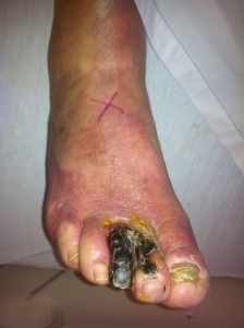 Toe gangrene secondary to Buerger's disease