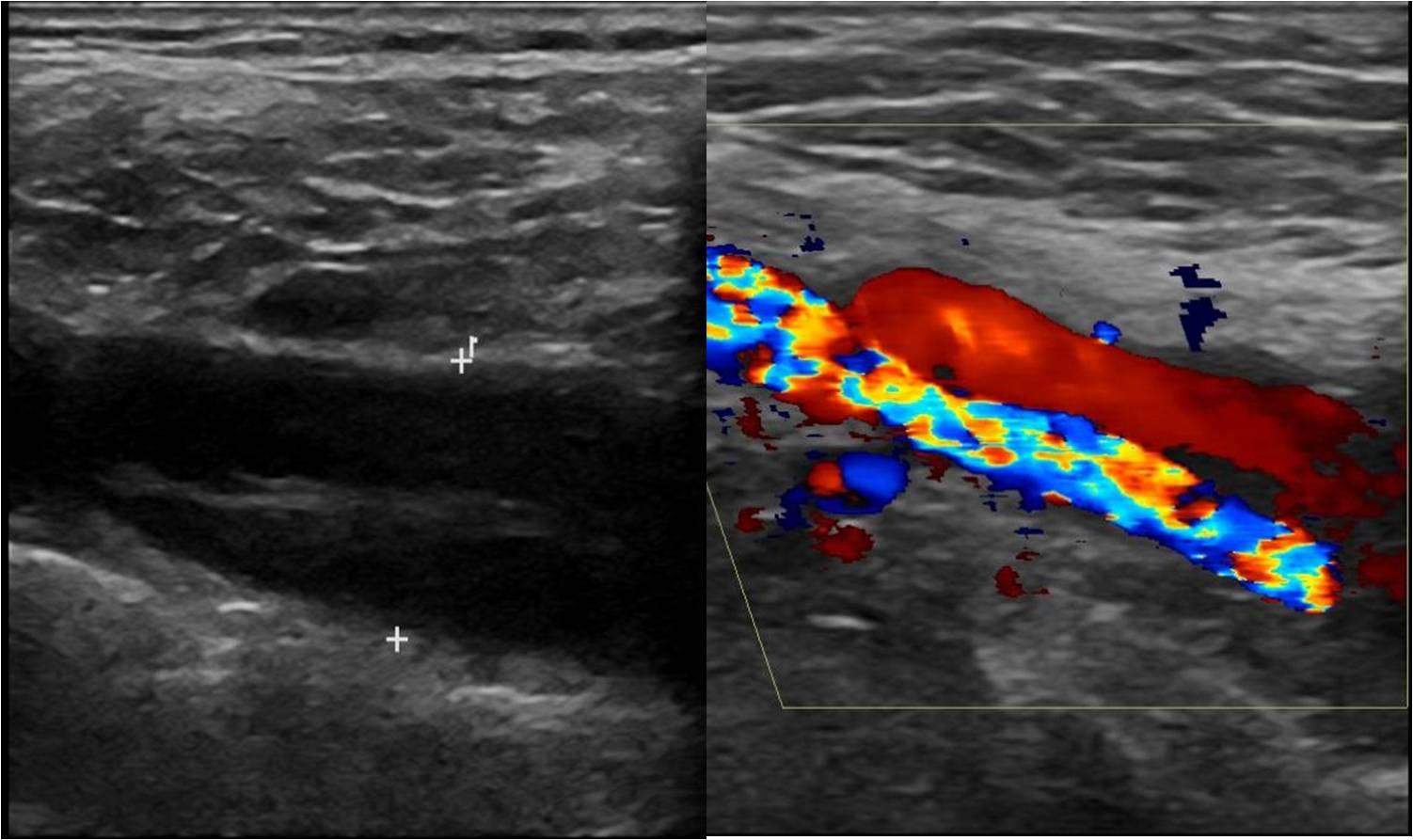 Carotid Artery Carotid Artery Ultrasound Images