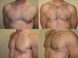 best Gynecomastia surgery 2