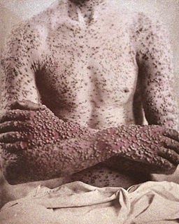 A smallpox victim in 1886. The pox lesions are most dense on the extremities, unlike chickenpox, whose lesions are concentrated on the torso. George Henry Fox