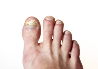 How To Treat A Toenail Infection | Hopkins Foot Doctor