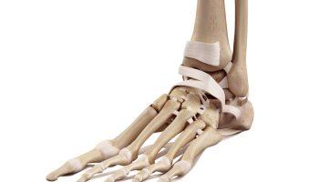 What Is Freibergs Disease Silverman Ankle Foot
