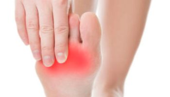 Foot Fractures: Signs, Symptoms and Diagnosis - Silverman