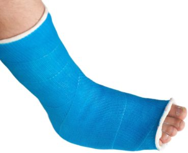 The Do's and Don'ts of Cast Care | Foot Doctor in Chanhassen