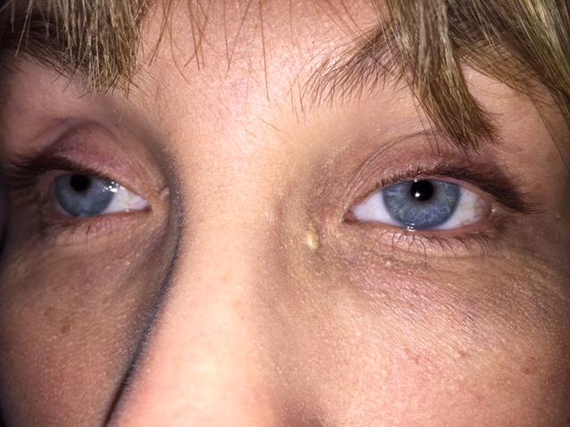 Närbild på Annas nya ögon.