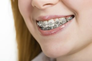 The Issues Caused by Crooked Teeth