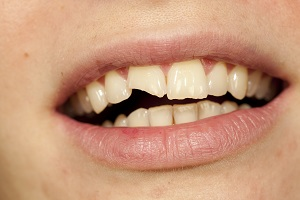 4 Ways to Treat Broken Teeth