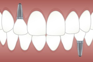A Closer Look at Cosmetic Dental Implants