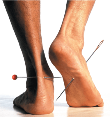 Indicações de uso - Terapia Anodyne - Agulhadas nos pés