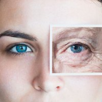 Get Younger Looking Eyes