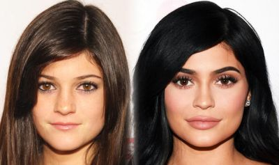 Kylie-Jenner-before-after