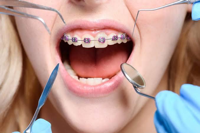 Ortodontia/ Aparelhos dentários