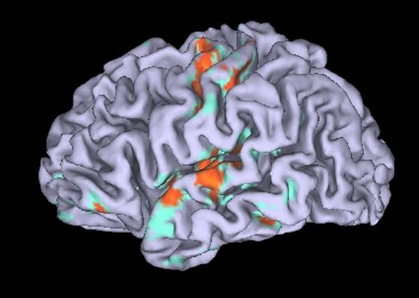 Decodificato codice del tatto nel cervello