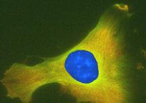 Cellula staminale mesenchimale al microscopia in fluorescenza