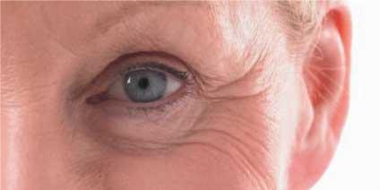 getting rid of under eye wrinkles