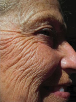 physical signs of aging