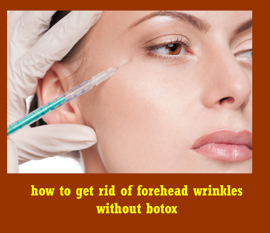 how to get rid of forehead wrinkles without botox