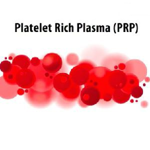Plasmacellule arricchite per la disfunzione erettile