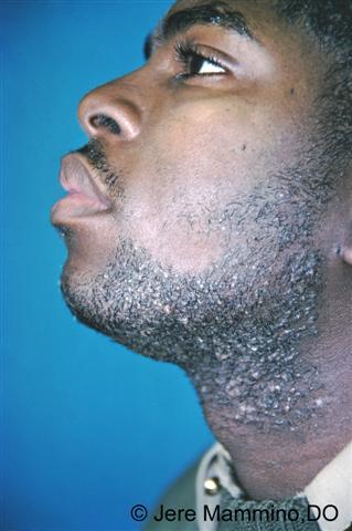 Pseudofolliculitis Barbae American Osteopathic College