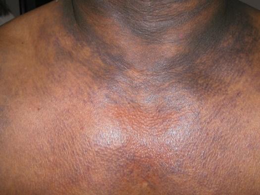 Darkish discoloration of skin involving the back, neck ...