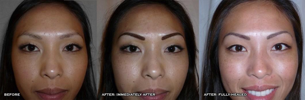 How To Lighten Permanent Eyebrow Makeup Anexa Market