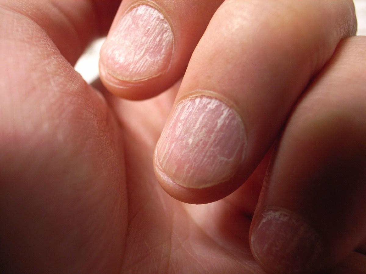 Längs- und Querrillen in den Fingernägeln