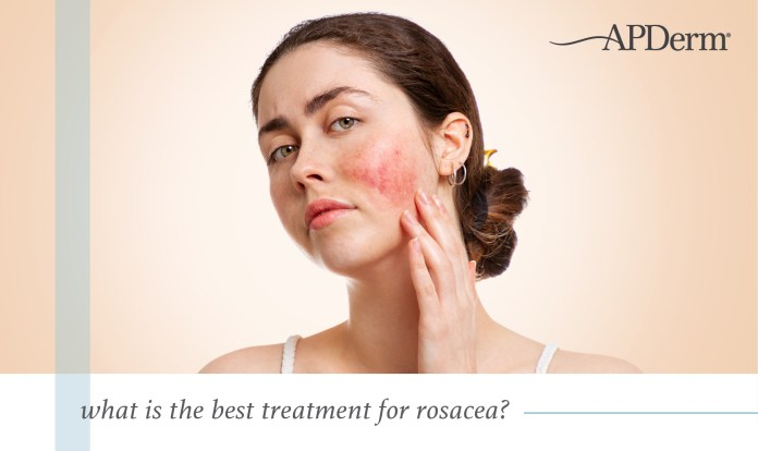 What Is The Best Rosacea Treatment Apderm