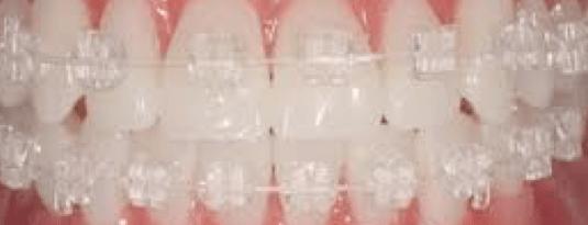clear-braces-close-up