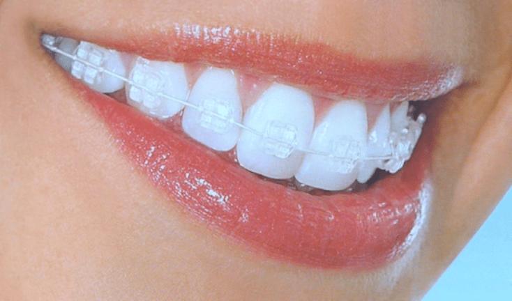 Behel Gigi Transparan- Global Estetik Dental Care