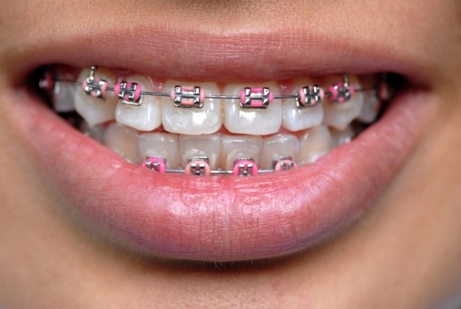 colored braces