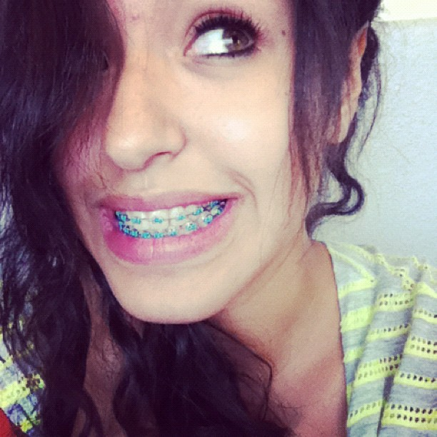 colored-braces