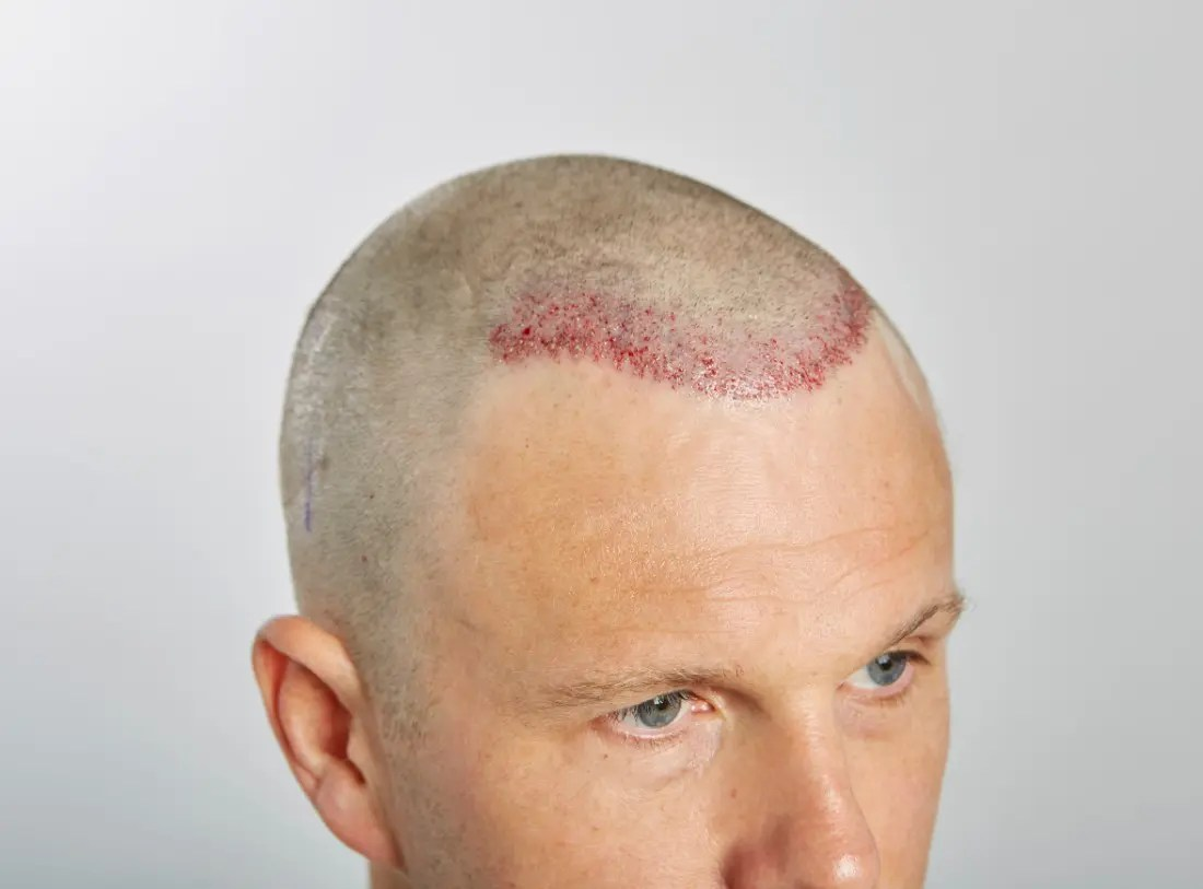 Immediately post op – 618 FU grafts via FUE extraction