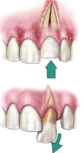 dientesdesalojados