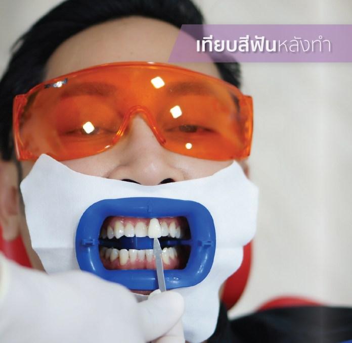 Review ฟอกสีฟัน FB-05