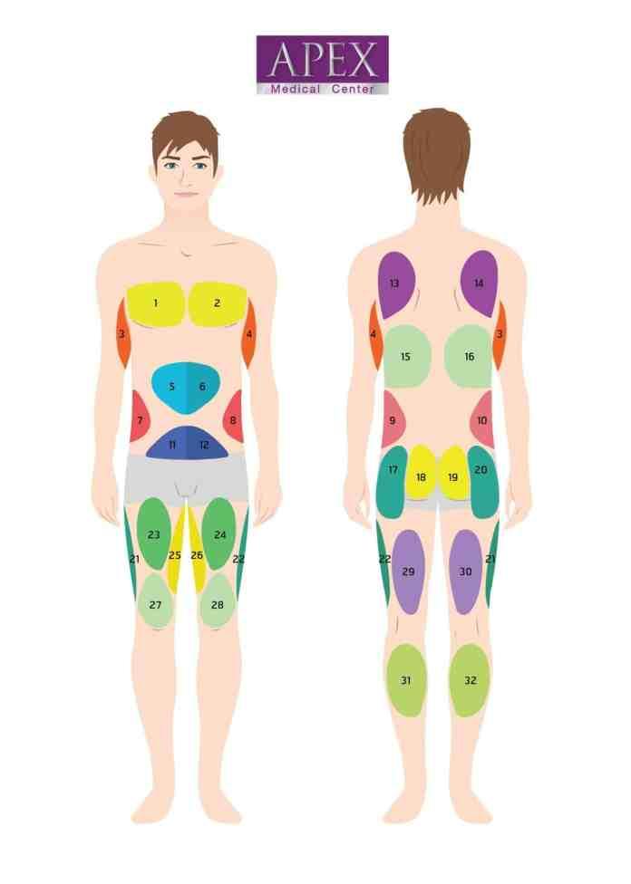 Liposuction Area