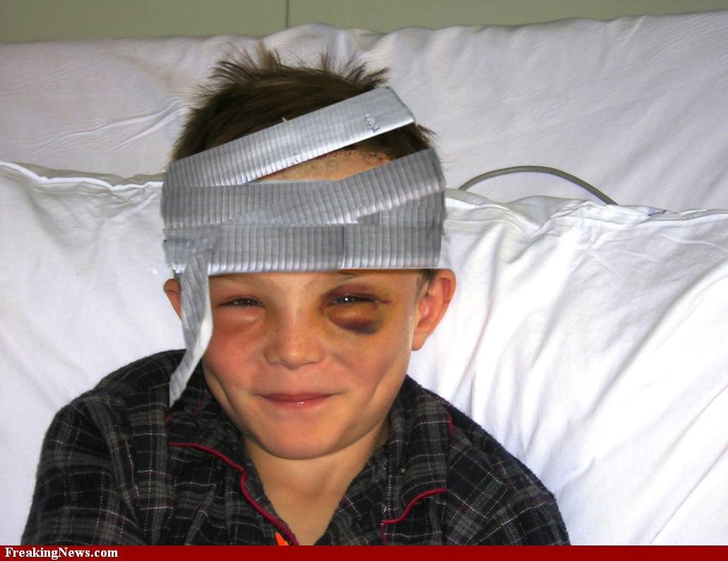 Duct-Tape-Bandages-for-Head-Injury-24505