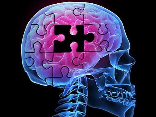 Alzheimer's Before Symptoms Appear